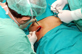 Breast augmentation surgery poster
