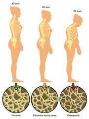 osteoporosi 3