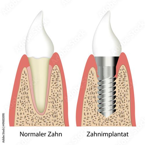vergleich gesunder zahn - implantat