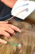 Leinwandbild Motiv Elektroden Für Neurofeedback auf Kinderkopf