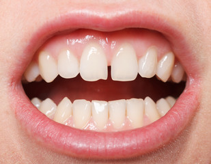 Diastema  between the upper incisors
