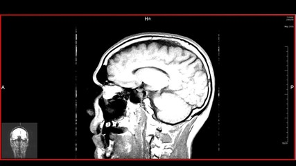Head MRT scan