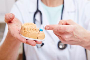 Zahntechnikerin zeigt auf Zahnmodell mit Krone