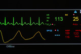 EKG monitor in ICU unit