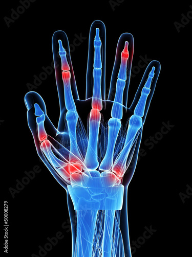 3d rendered illustration of painful finger joints