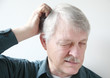 senior man scratches his itchy scalp