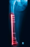 Fracture femur, femur x-rays image showing plate and screw fixat