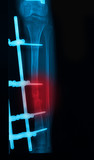 leg x-rays image showing plate and screw external fixation tibia