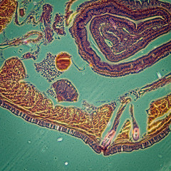 micrograph earthworm crosscutting