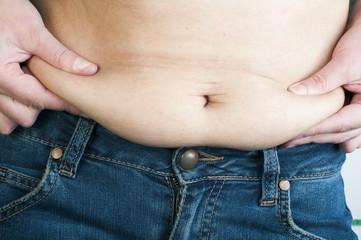 Woman pinching fat from her abdomen