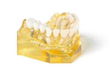 Zahnersatz - Implantat