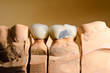 Keramik-Kronen beschädigt, Abplatzung (auf Gipsmodell)
