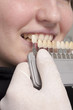 dentist choose white of teeth