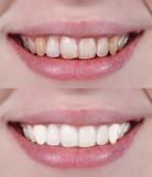 Fototapety tratamiento dental