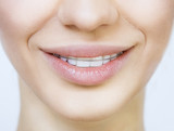Beautiful smiling girl with retainer for teeth - 50430853