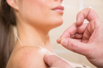 Doctor hands acupuncture needle pricking on woman