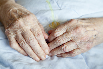 Series of photos: Hands of 92 years old lady - close up