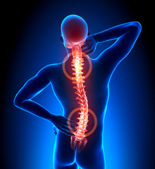 Male Hurt Backbone - Vertebrae Pain