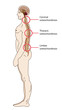 Постер, плакат: spinal osteochondrosis