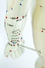 Akupunktur Demonstration am Modell
