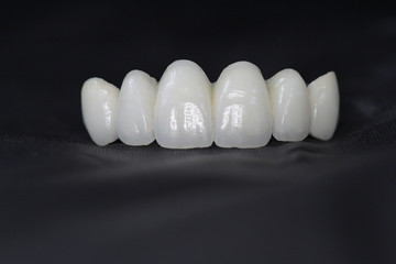 Prosthetic dental 1