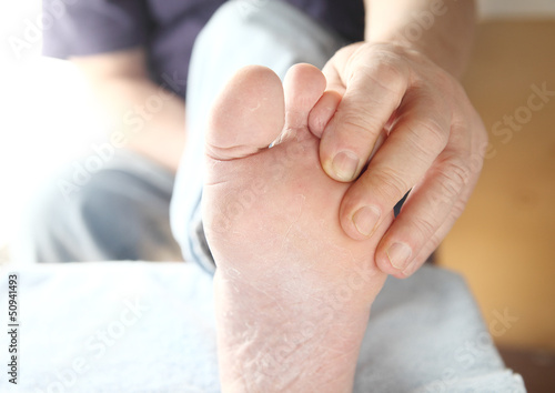 dry skin on the foot of a man