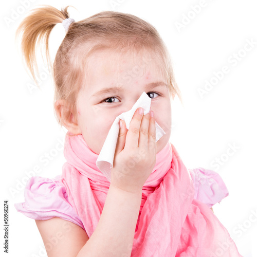 Sick little girl with chickenpox with napkin