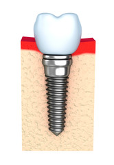 Dental implant in jaw bone