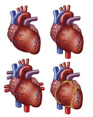 4 versiones del Corazón