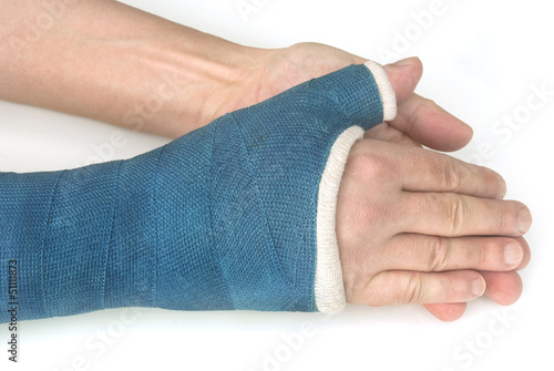 Broken wrist, arm with a blue fiberglass cast