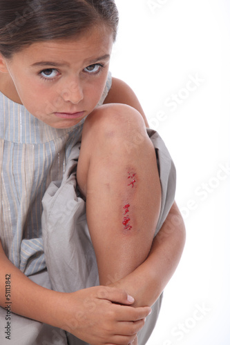Little girl with grazed knee