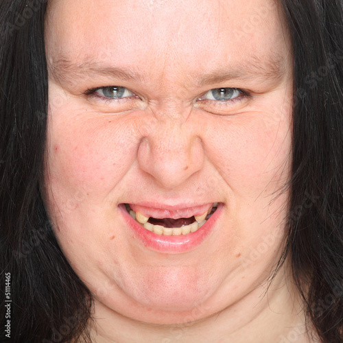 Obese woman with missing teeth.