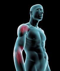Uomo raggi x dolore gomito spalla