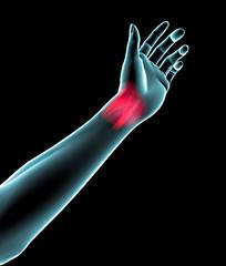 Polso mano braccio dolore