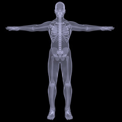 X-ray of man