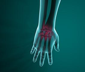 Mano raggi X ossa dolore polso