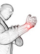 3d rendered medical illustration - painful wrist
