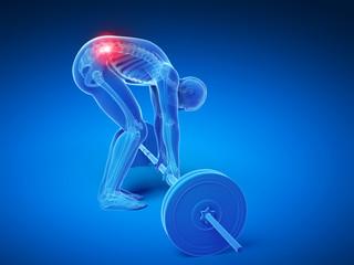 3d rendered medical illustration - wrong lifting posture
