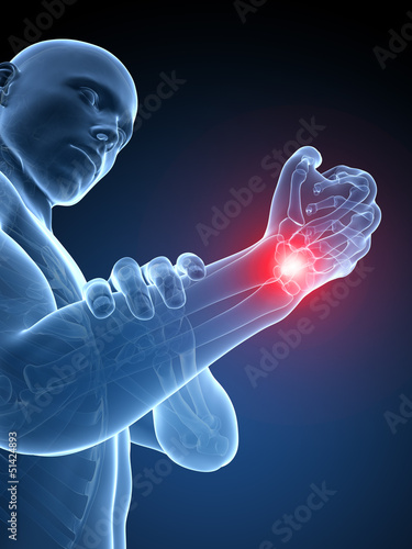 3d rendered medical illustration - painful wrist