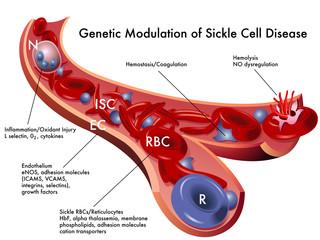 Modulazione genetica anemia falciforme