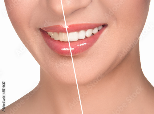 wide sincere smile on a white background