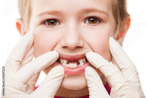 Dentist examining child teeth