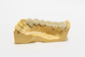 A finished model of posterior dental bridge