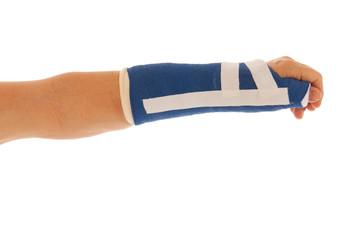 Broken wrist in gypsum