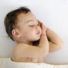 Child with chicken pox