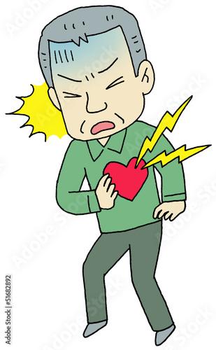 心筋梗塞 男性
