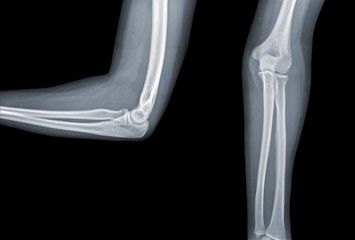 X-ray elbow