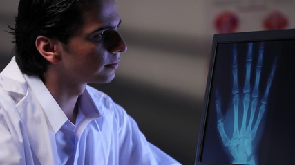 Doctor looking at x-ray image of a hand on a computer