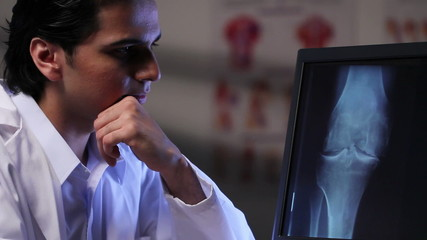 Doctor looking at x-ray image of a knee on a computer
