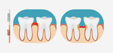 Periodontal tooth disease